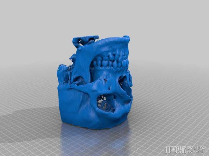头骨(前半部分) 3D打印模型渲染图