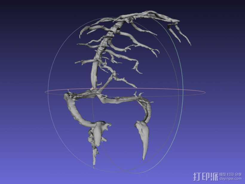冠状窦模型 3D打印模型渲染图