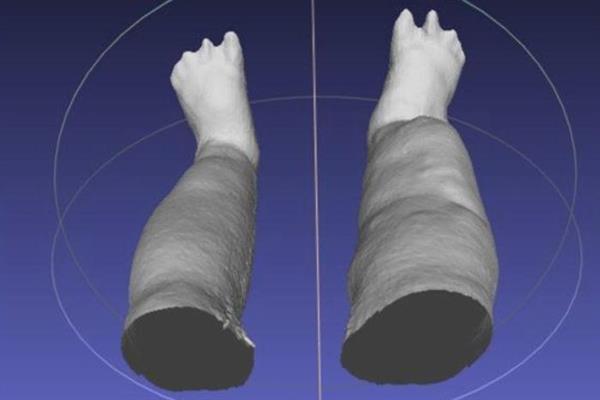 iPad 3D扫描仪帮助华盛顿大学科学家测量象皮病患者的腿肿胀