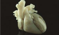 3D打印助力医生诊治复杂性先天性心脏畸形患者