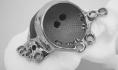 Materialise帮助一患者成功完成3D打印的髋关节植入物的矫正手术