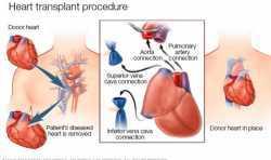 BIOLIFE4D希望筹集5000万美元来开发3D打印的移植心脏
