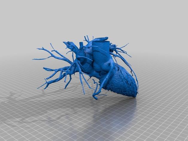 心脏和血管  模型 3D打印模型渲染图