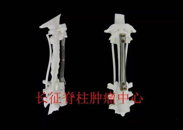 全球首例!上海长征医院成功为患者植入15厘米长3D打印钛金属椎体