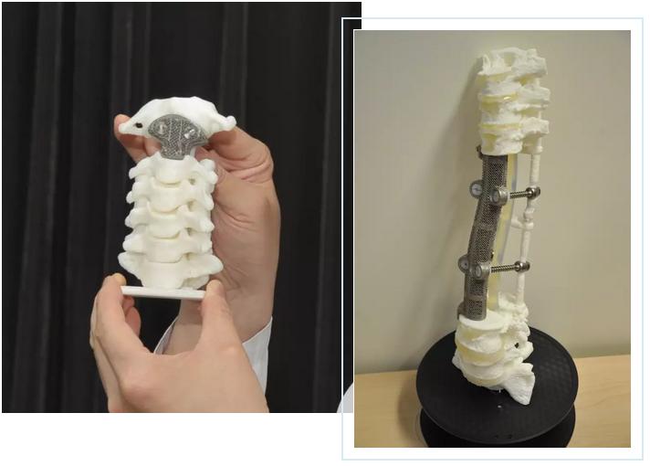 北大第三医院刘忠军:3D打印钛合金骨骼挺起中国人的脊梁
