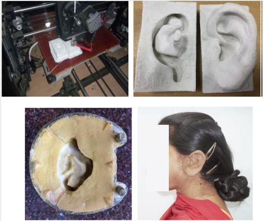 医疗团队为一名印度女性快速制造出3D打印耳朵假体植入物