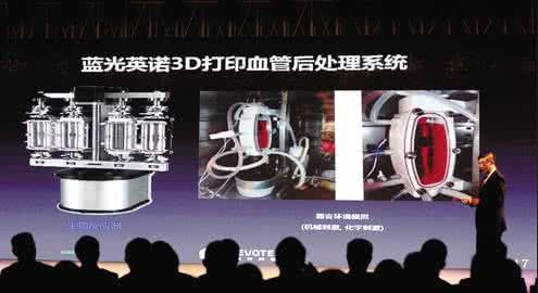 四川蓝光英诺解决3D打印人体器官难题,中国技术让世界瞩目