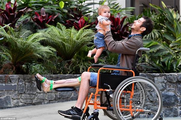 医院为澳洲小伙植入了3D打印胫骨支架 助其逃脱截肢厄运