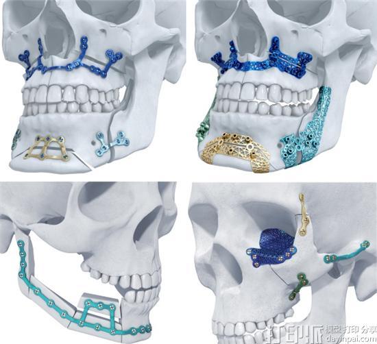Materialise的3D打印钛颌面植入物将于9月中旬在美国开始销售